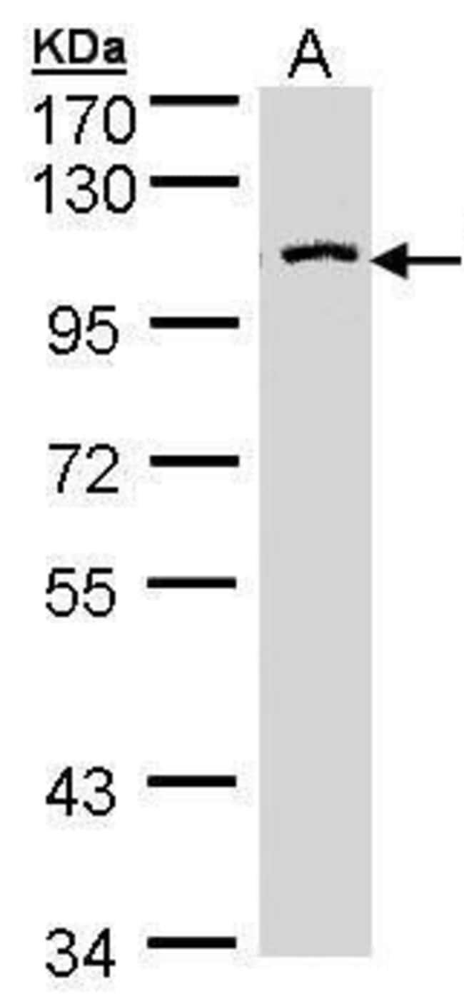 CENTG3 Rabbit anti-Human, Polyclonal, Invitrogen 100 µL; Unconjugated