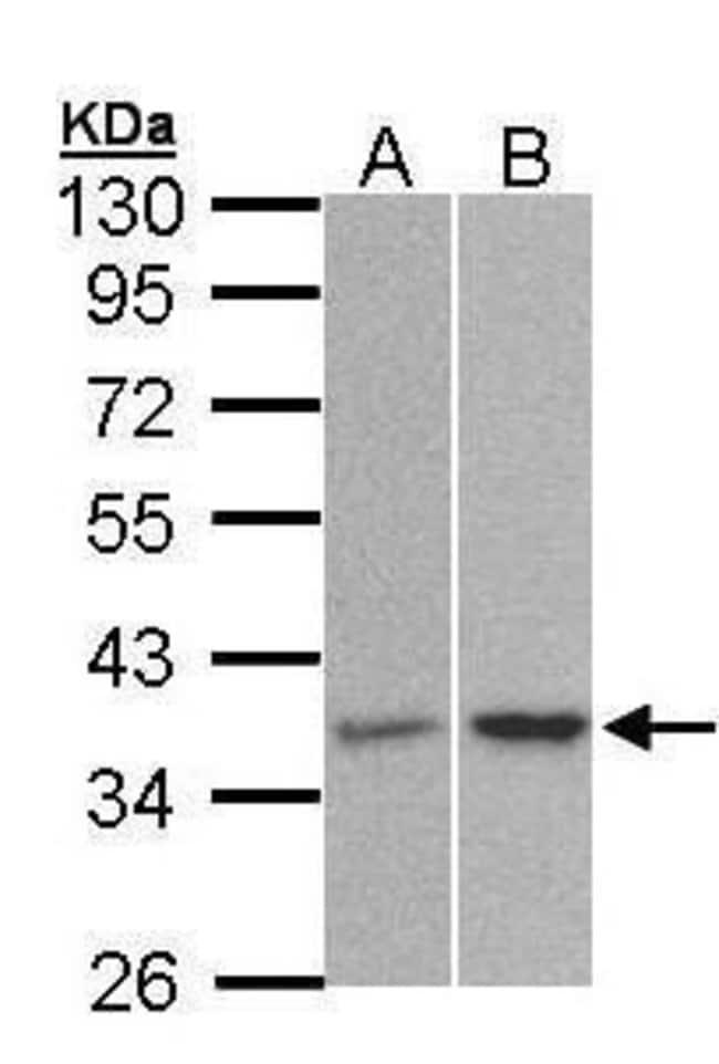 PP2A alpha Rabbit anti-Human, Mouse, Polyclonal, Invitrogen 100 µL;