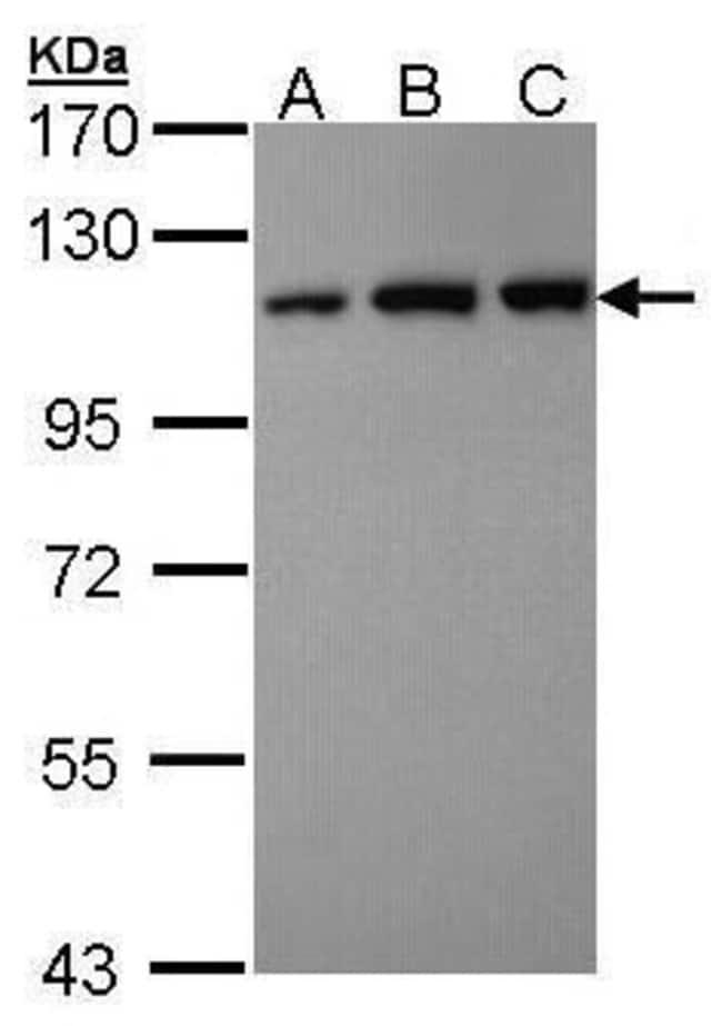 VDP Rabbit anti-Human, Polyclonal, Invitrogen 100 µL; Unconjugated
