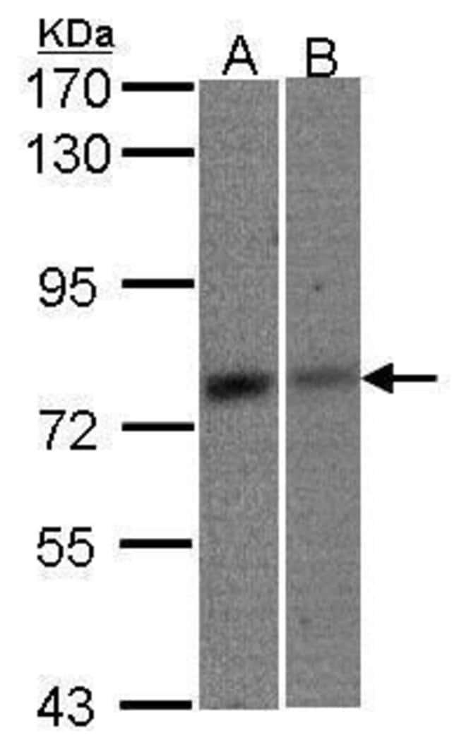 MTA2 Rabbit anti-Human, Polyclonal, Invitrogen 100 µL; Unconjugated