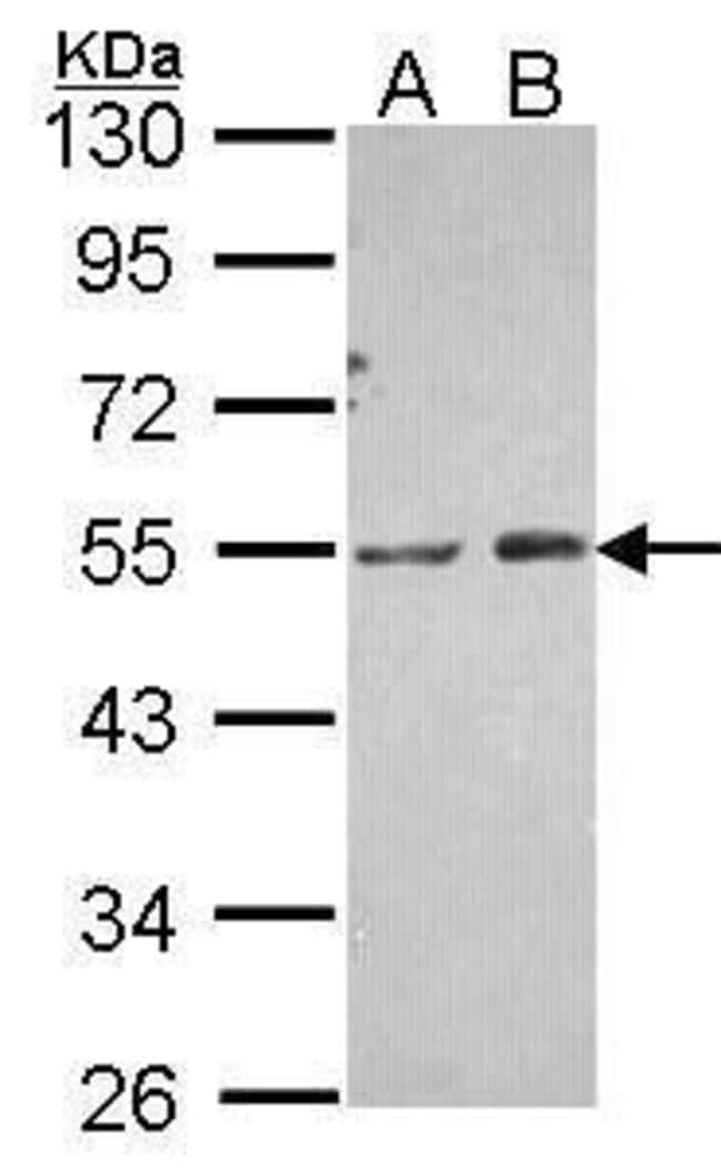 PIP4K2A Rabbit anti-Human, Polyclonal, Invitrogen 100 µL; Unconjugated