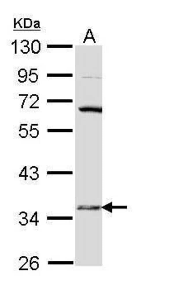 HSD17B6 Rabbit anti-Human, Polyclonal, Invitrogen™ 100 μL; Unconjugated Primary Antibodies Hs to Hz