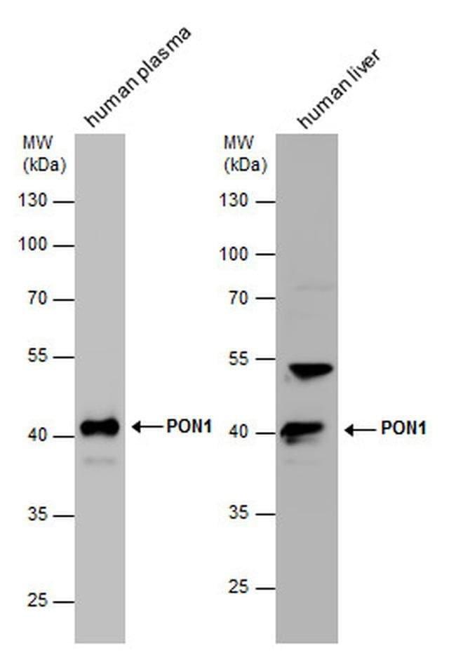 PON1 Rabbit anti-Human, Mouse, Polyclonal, Invitrogen™ 100 μL; Unconjugated Primary Antibodies Pn to Pp