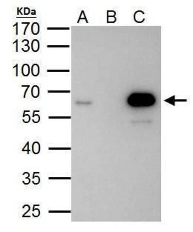 PKNOX1 Rabbit anti-Human, Polyclonal, Invitrogen™ 100 μL; Unconjugated Primary Antibodies Pi to Pm