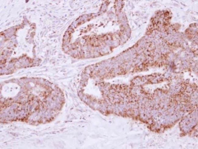 MTHFD2 Rabbit anti-Human, Polyclonal, Invitrogen™ 100 μL; Unconjugated Primary Antibodies Mo to Mu
