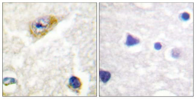 Phospho-CaMKII alpha/beta/delta (Thr305) Rabbit anti-Human, Mouse, Rat, Polyclonal, Invitrogen™ 100 μg; Unconjugated Primary Antibodies Cam to Car