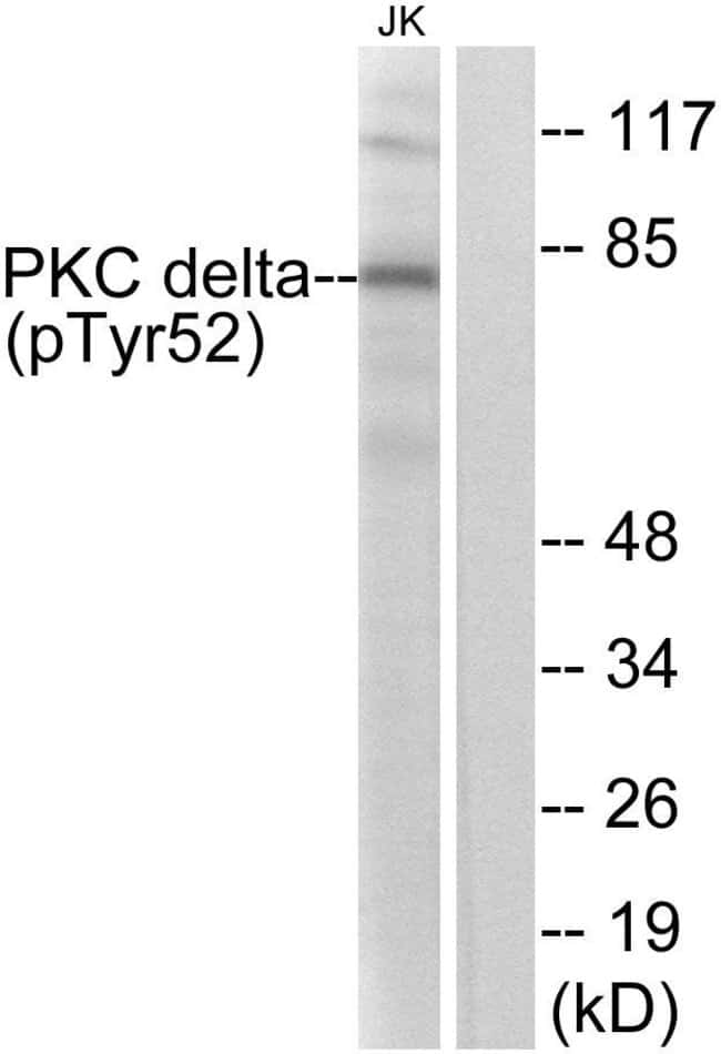 Phospho-PKC delta (Tyr52) Rabbit anti-Human, Mouse, Rat, Polyclonal, Invitrogen™ 100 μg; Unconjugated Primary Antibodies Pi to Pm