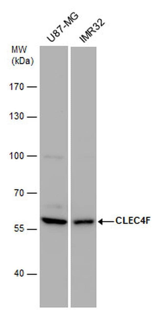 CLEC4F Rabbit anti-Human, Polyclonal, Invitrogen 100 µL; Unconjugated