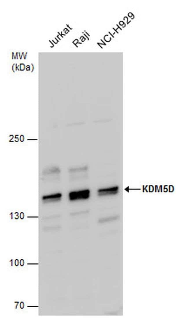 KDM5D Rabbit anti-Human, Polyclonal, Invitrogen 100 µL; Unconjugated