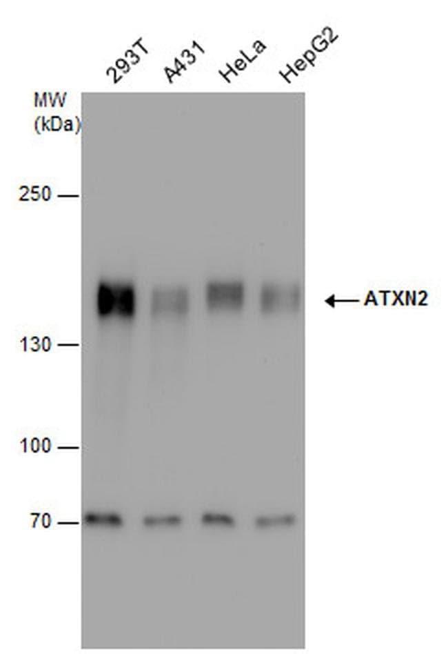Ataxin 2 Rabbit anti-Human, Mouse, Polyclonal, Invitrogen 100 µL;