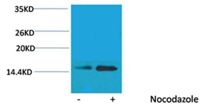 Phospho-Histone H2B (Ser32) Rabbit anti-Human, Polyclonal, Invitrogen 100