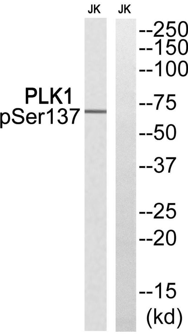 Phospho-PLK1 (Ser137) Rabbit anti-Human, Polyclonal, Invitrogen 100 µL;