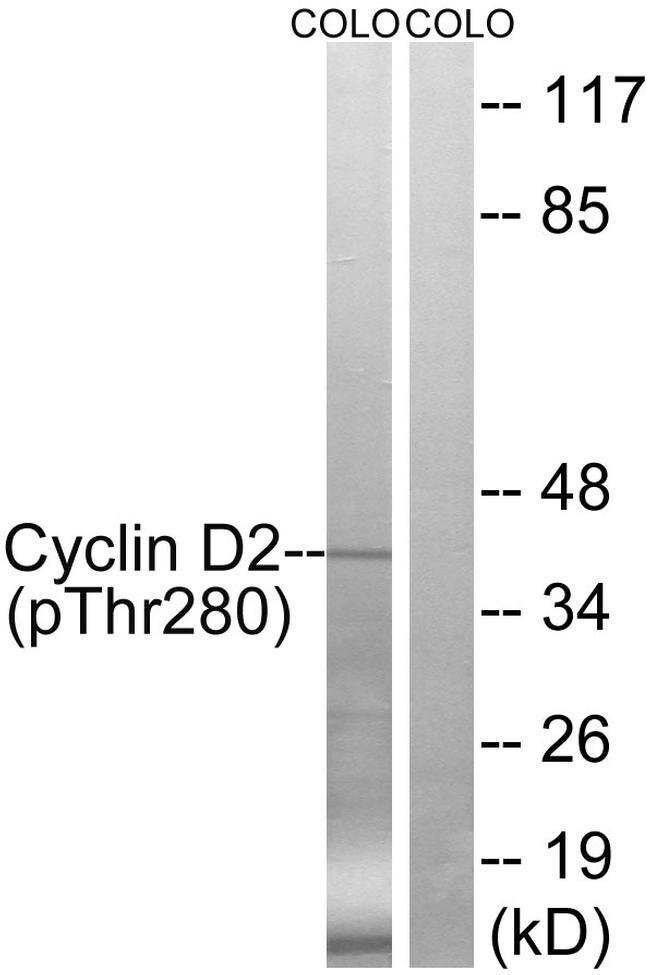 Phospho-Cyclin D2 (Thr280) Rabbit anti-Human, Polyclonal, Invitrogen 100