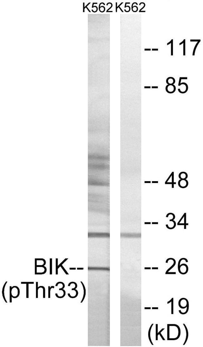 Phospho-BIK (Thr33) Rabbit anti-Human, Polyclonal, Invitrogen 100 µL;