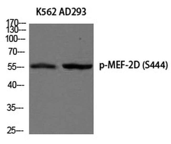 Phospho-MEF2D (Ser444) Rabbit anti-Human, Polyclonal, Invitrogen 100 µL;