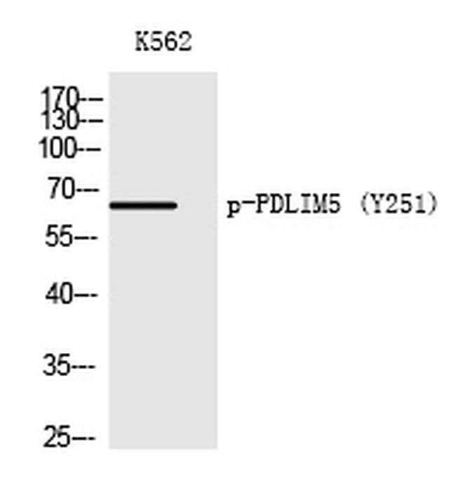 Phospho-PDLIM5 (Tyr251) Rabbit anti-Human, Polyclonal, Invitrogen 100 µL;