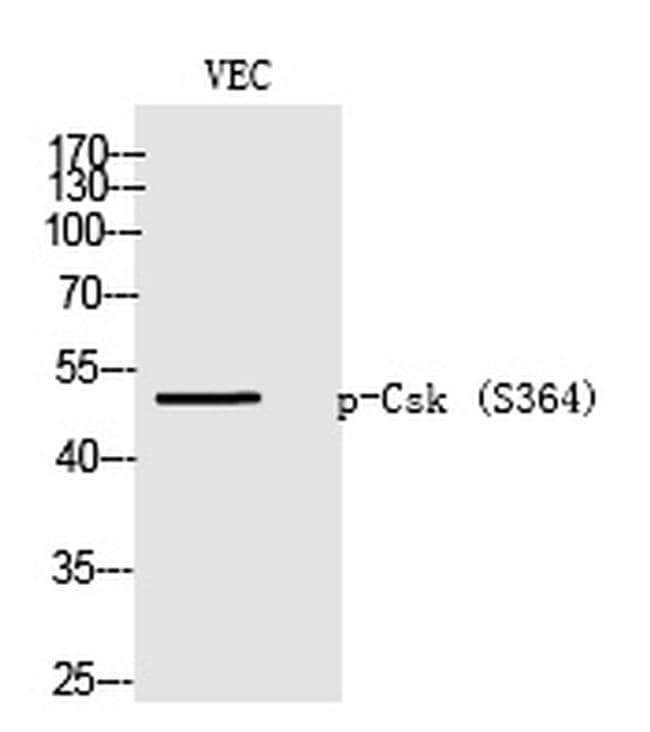 Phospho-CSK (Ser364) Rabbit anti-Human, Polyclonal, Invitrogen 100 µL;