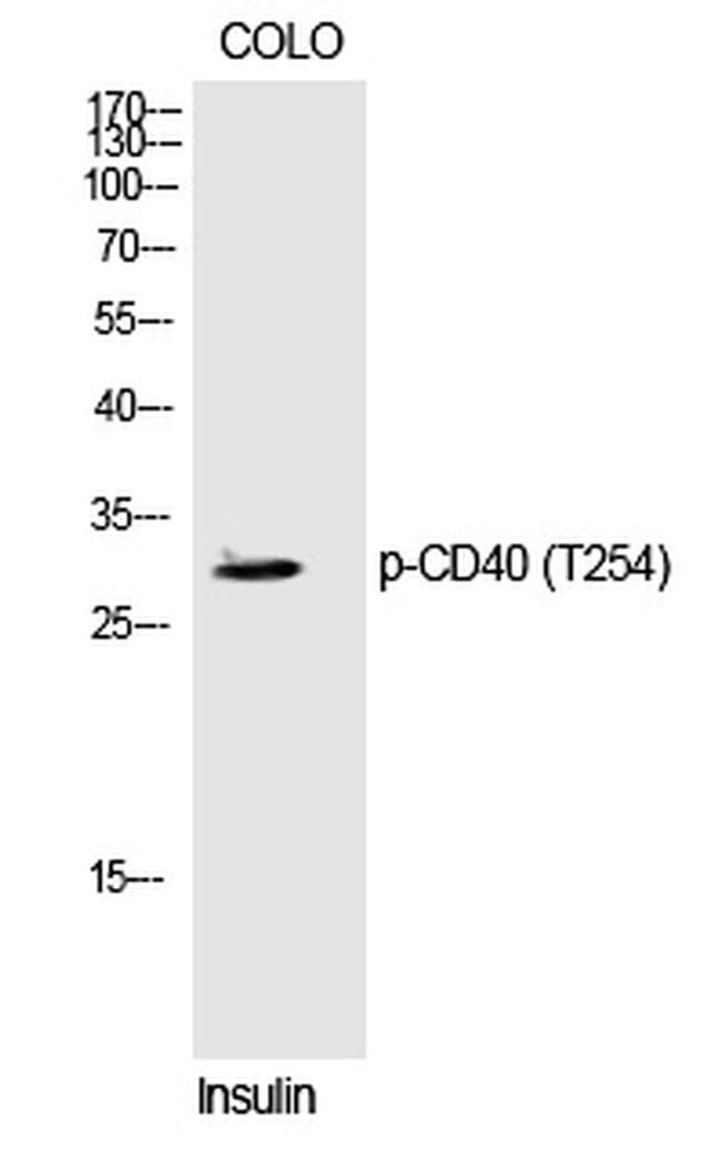 Phospho-CD40 (Thr254) Rabbit anti-Human, Polyclonal, Invitrogen 100 µL;