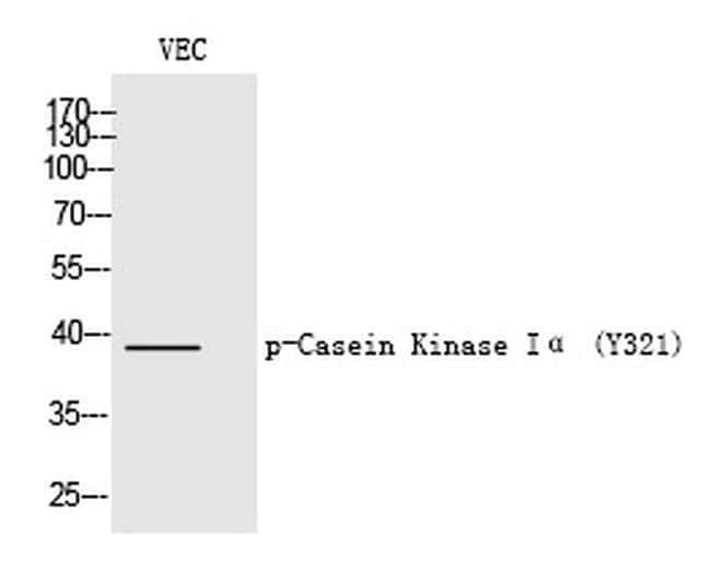 Phospho-CK1 alpha (Tyr321) Rabbit anti-Human, Polyclonal, Invitrogen 100