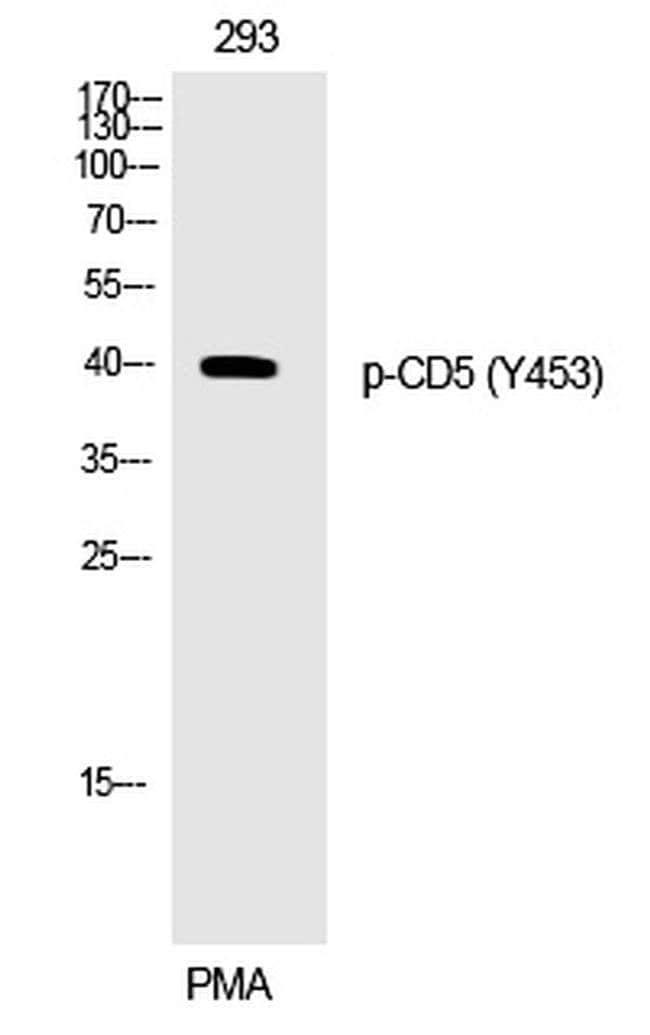 Phospho-CD5 (Tyr453) Rabbit anti-Human, Polyclonal, Invitrogen 100 µL;