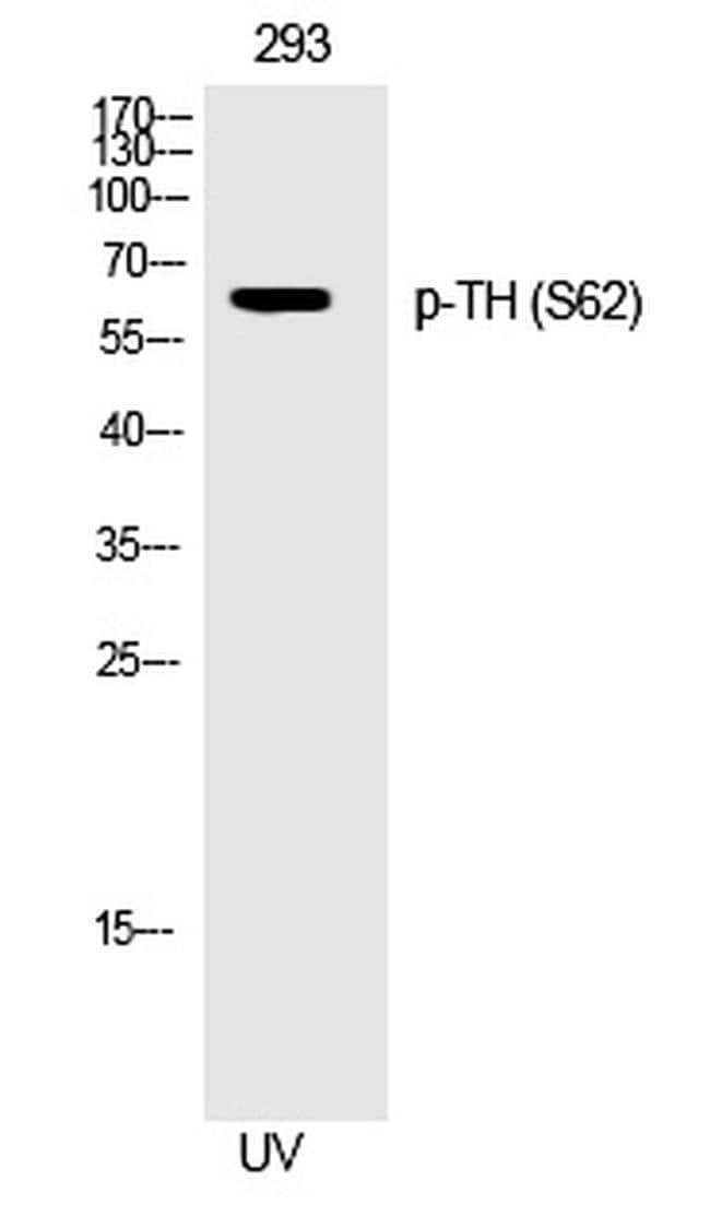 Phospho-Tyrosine Hydroxylase (Ser62) Rabbit anti-Human, Polyclonal, Invitrogen