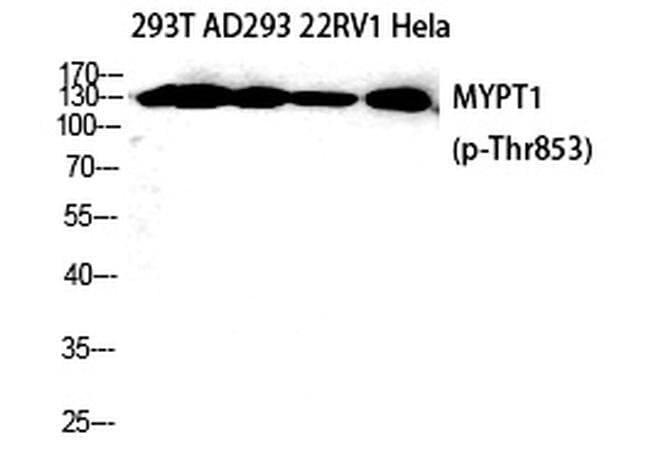 Phospho-MYPT1 (Thr853) Rabbit anti-Human, Polyclonal, Invitrogen 100 µL;