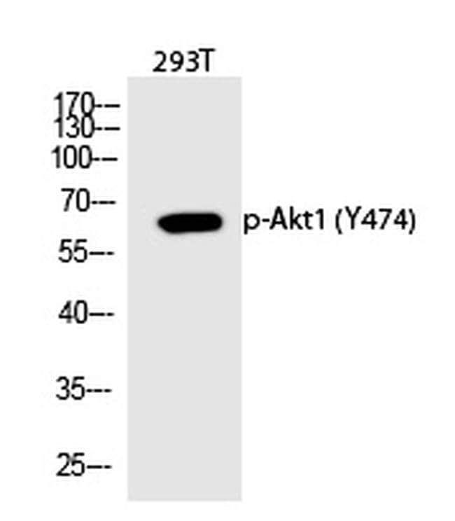 Phospho-AKT1 (Tyr474) Rabbit anti-Human, Polyclonal, Invitrogen 100 µL;