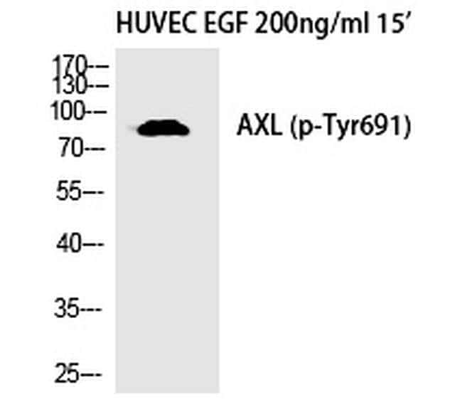 Phospho-Axl (Tyr691) Rabbit anti-Human, Polyclonal, Invitrogen 100 µL;