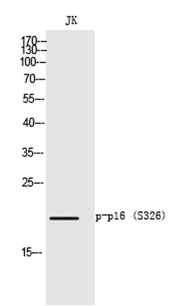 Phospho-p16INK4a (Ser326) Rabbit anti-Human, Polyclonal, Invitrogen 100