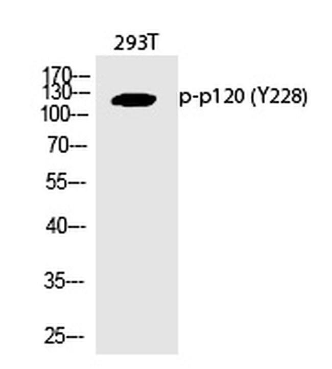 Phospho-delta Catenin (Tyr228) Rabbit anti-Human, Polyclonal, Invitrogen
