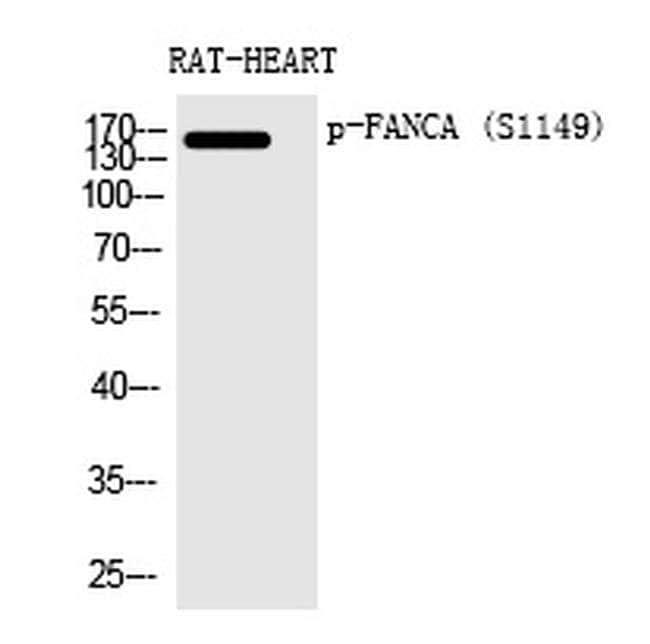 Phospho-FANCA (Ser1149) Rabbit anti-Human, Rat, Polyclonal, Invitrogen