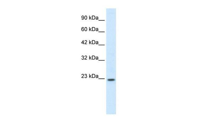 HOXB6 Rabbit anti-Canine, Equine, Guinea Pig, Human, Mouse, Porcine, Rabbit, Rat, Polyclonal, Invitrogen™ 100 μL; Unconjugated Primary Antibodies Hj to Hr