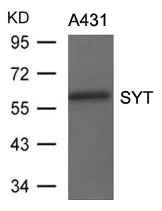 SS18 Rabbit anti-Human, Mouse, Rat, Polyclonal, Invitrogen 100 µL;
