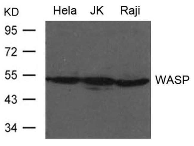 WASP Rabbit anti-Human, Mouse, Rat, Polyclonal, Invitrogen 100 µL;