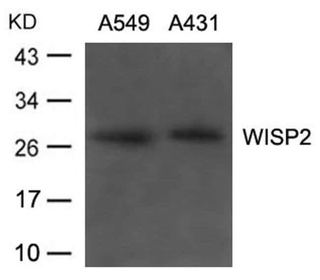 WISP2 Rabbit anti-Human, Polyclonal, Invitrogen 100 µL; Unconjugated