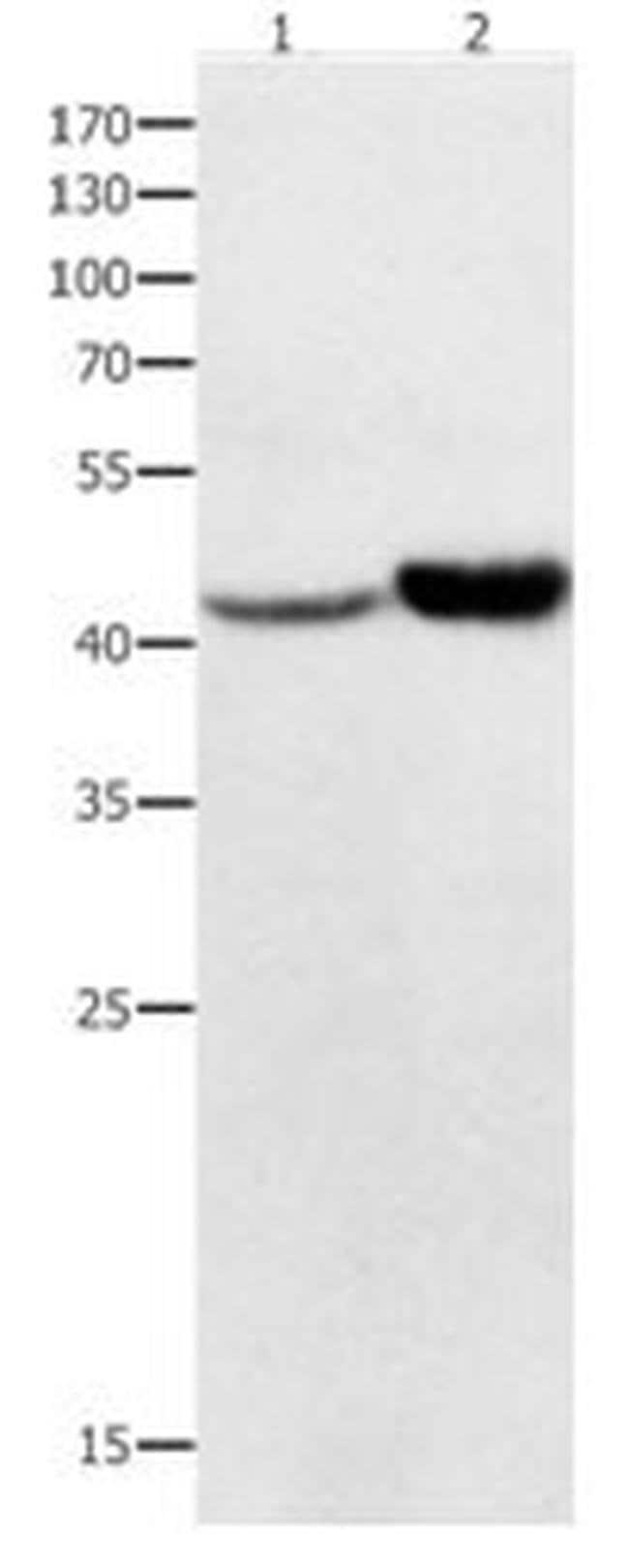 NFKBID Rabbit anti-Human, Polyclonal, Invitrogen 100 µL; Unconjugated