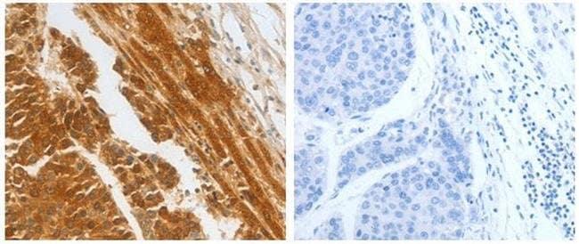 CFHR1 Rabbit anti-Human, Polyclonal, Invitrogen 100 µL; Unconjugated
