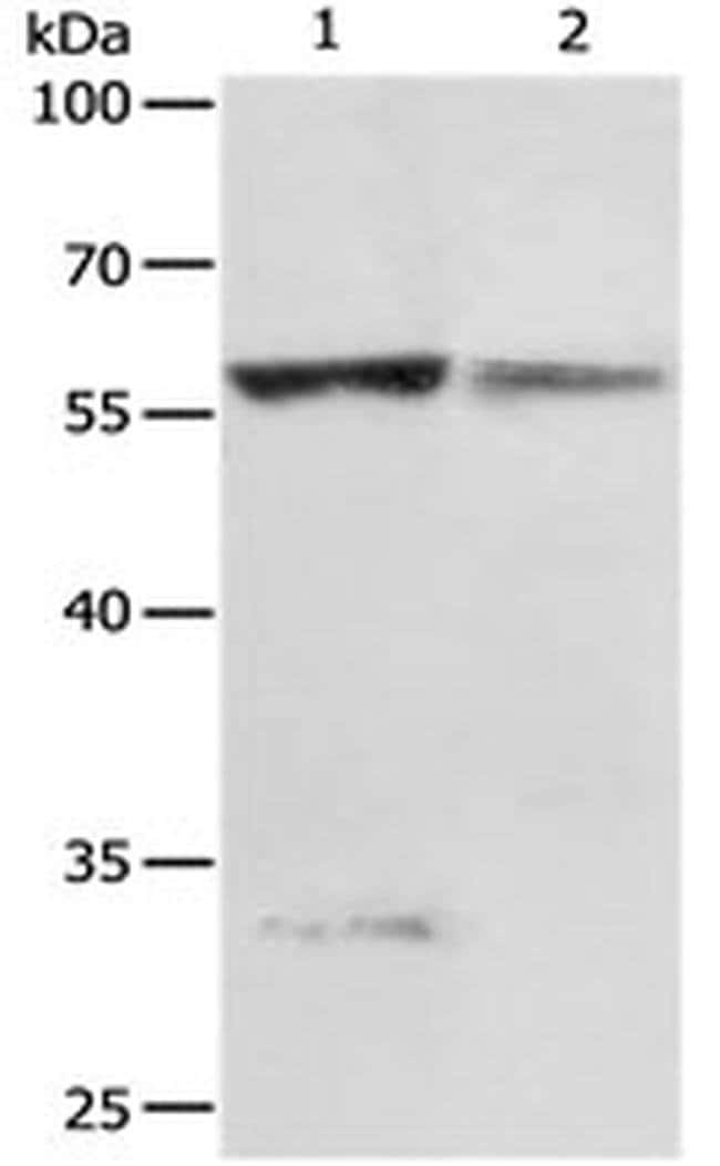 PRCP Rabbit anti-Human, Polyclonal, Invitrogen 100 µL; Unconjugated