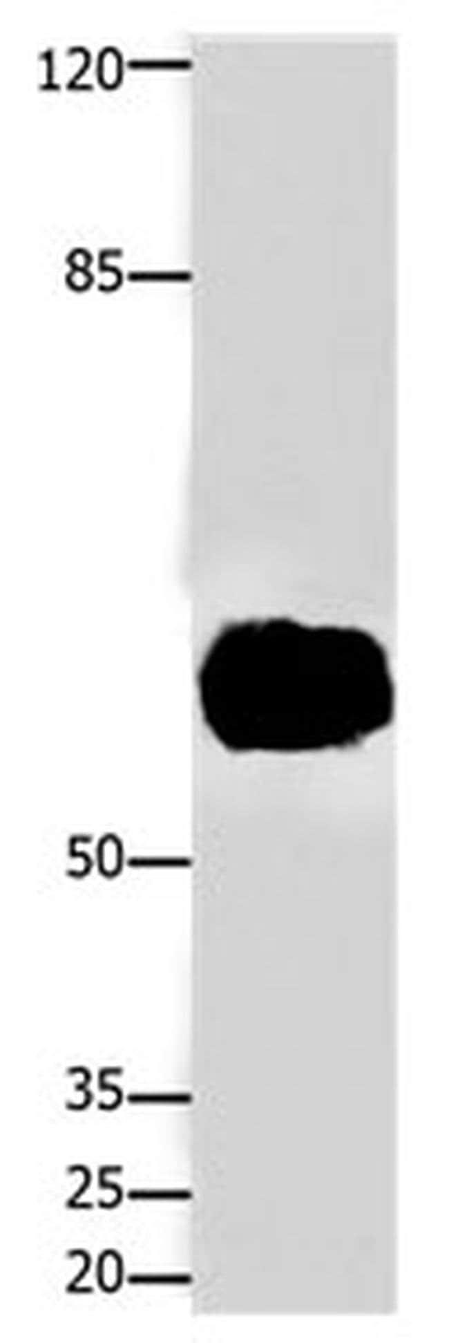 FOXJ3 Rabbit anti-Human, Mouse, Rat, Polyclonal, Invitrogen 100 µL;