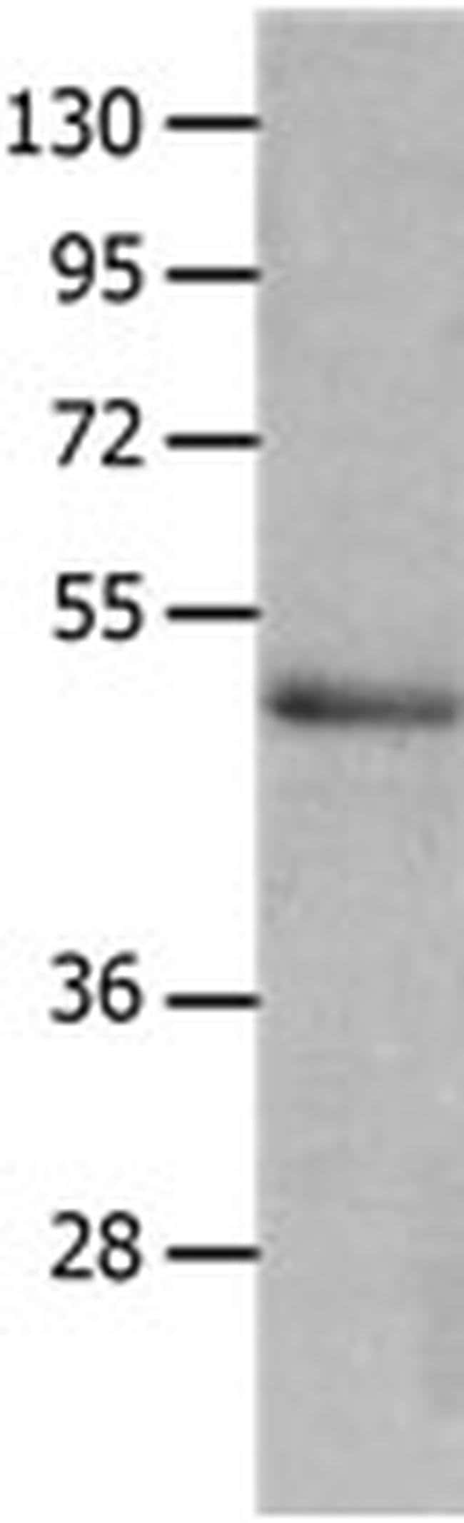NCK2 Rabbit anti-Human, Mouse, Polyclonal, Invitrogen 100 µL; Unconjugated