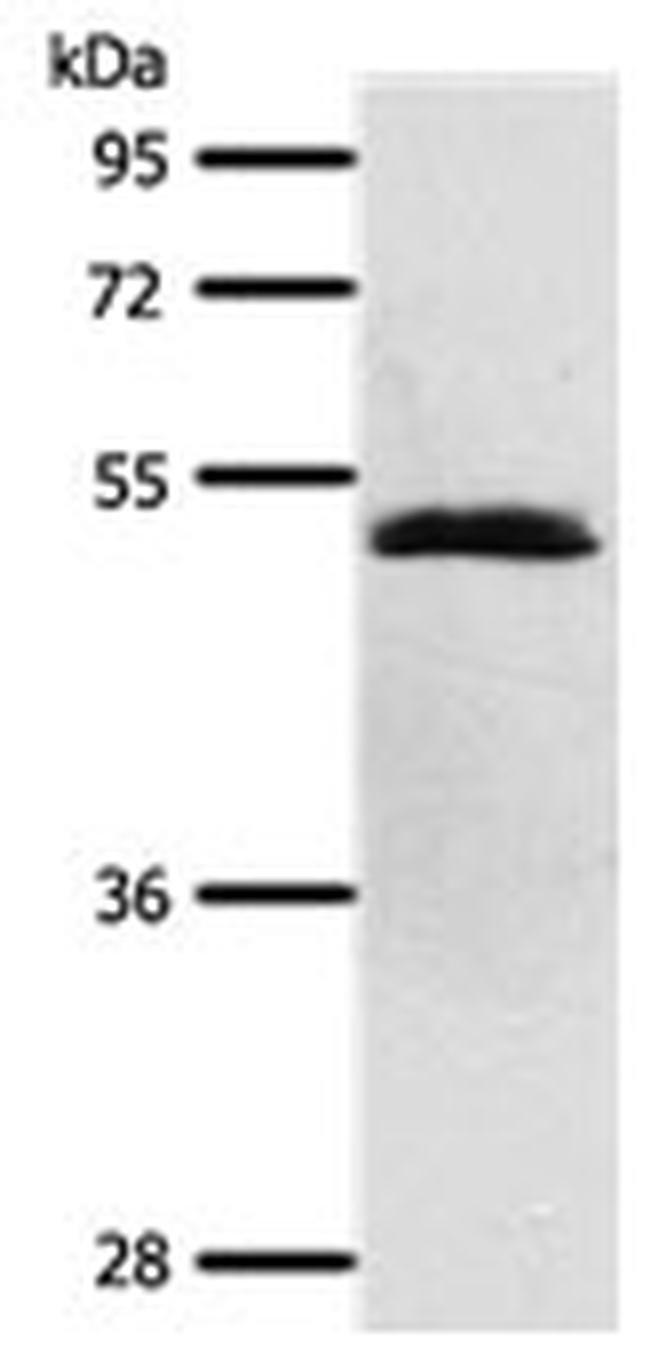 SCTR Rabbit anti-Human, Polyclonal, Invitrogen 100 µL; Unconjugated