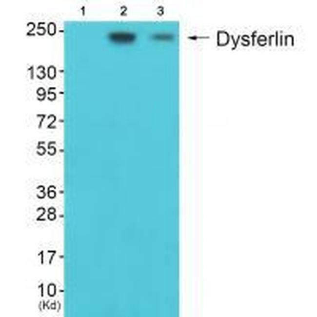 Dysferlin Rabbit anti-Human, Mouse, Polyclonal, Invitrogen 100 µL;