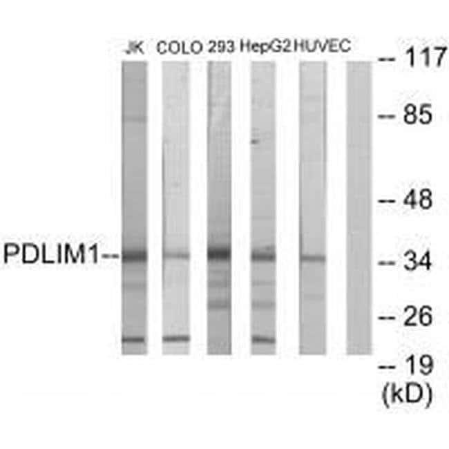PDLIM1 Rabbit anti-Human, Mouse, Rat, Polyclonal, Invitrogen 100 µL;