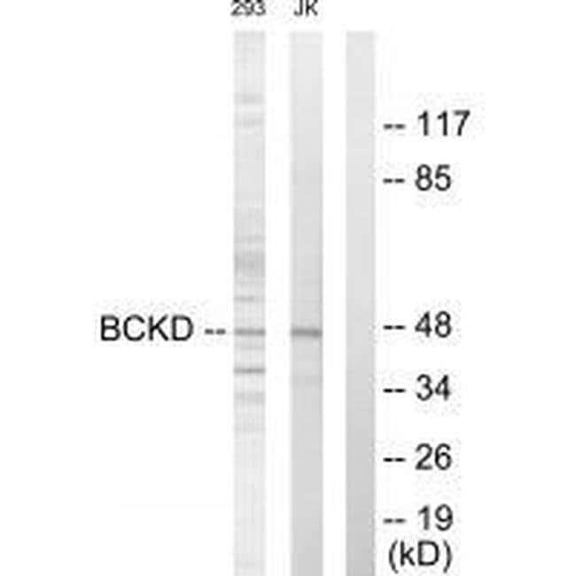 BCKDK Rabbit anti-Human, Mouse, Rat, Polyclonal, Invitrogen 100 µL;