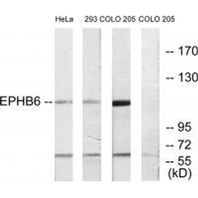EphB6 Rabbit anti-Human, Mouse, Rat, Polyclonal, Invitrogen 100 µL;