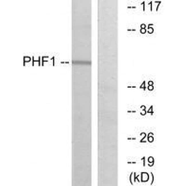 PHF1 Rabbit anti-Human, Mouse, Rat, Polyclonal, Invitrogen 100 µL;