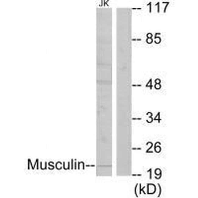 MSC Rabbit anti-Human, Mouse, Polyclonal, Invitrogen 100 µL; Unconjugated