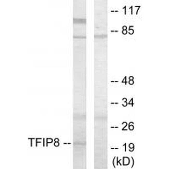 TNFAIP8 Rabbit anti-Human, Mouse, Polyclonal, Invitrogen 100 µL; Unconjugated