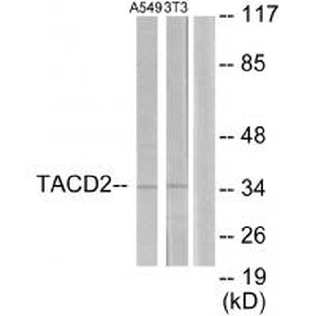 TROP2 Rabbit anti-Human, Mouse, Rat, Polyclonal, Invitrogen 100 µL;