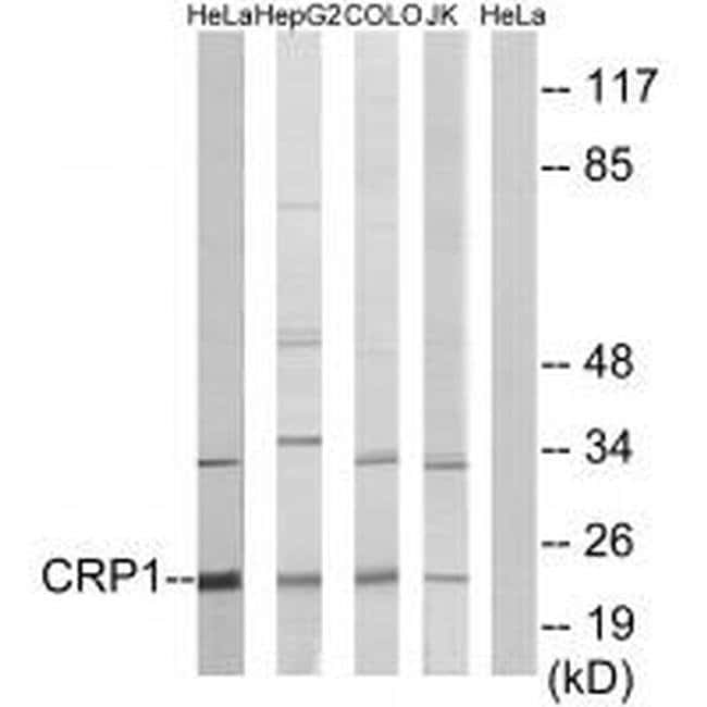 CRP1 Rabbit anti-Human, Mouse, Rat, Polyclonal, Invitrogen 100 µL;